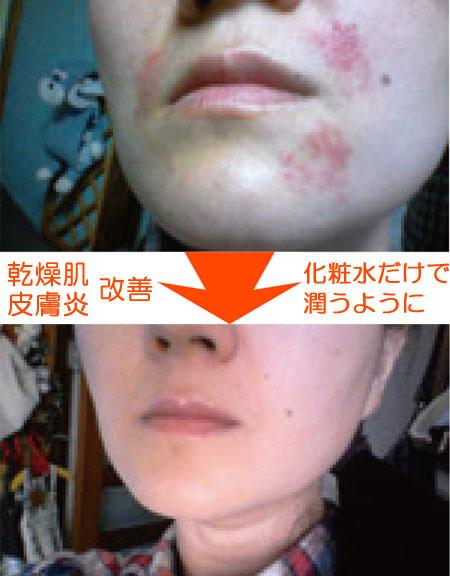 プラセンタによる皮膚疾患改善例